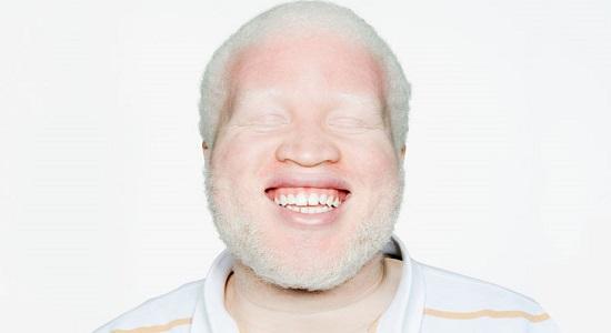 человек альбинос